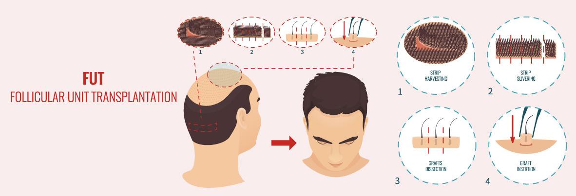 Hair-Transplantation_07.jpg (111 KB)