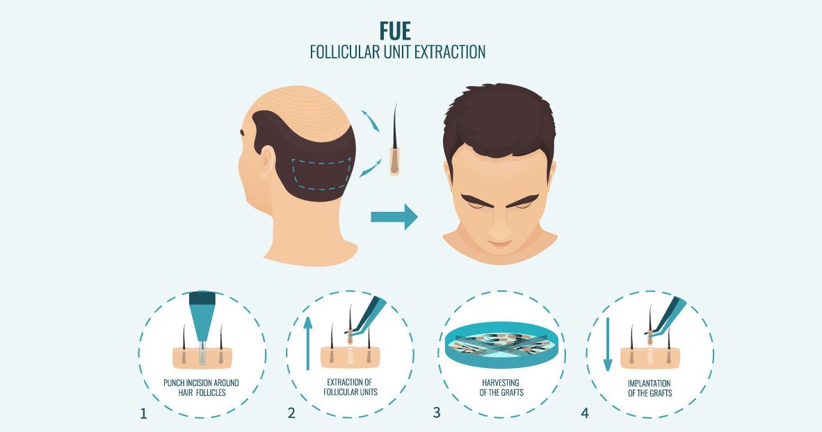 Hair-Transplantation_10.jpg (98 KB)